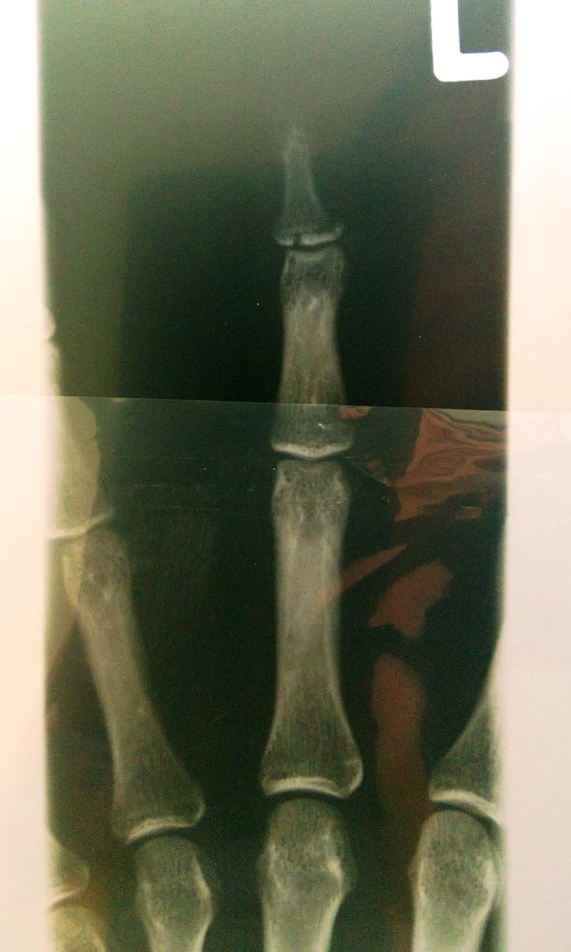 Knochenabsplitterung