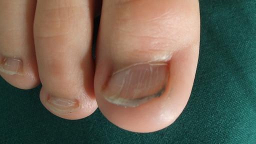 gewölbte fingernägel krankheit