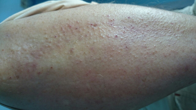 dermatitis aumento