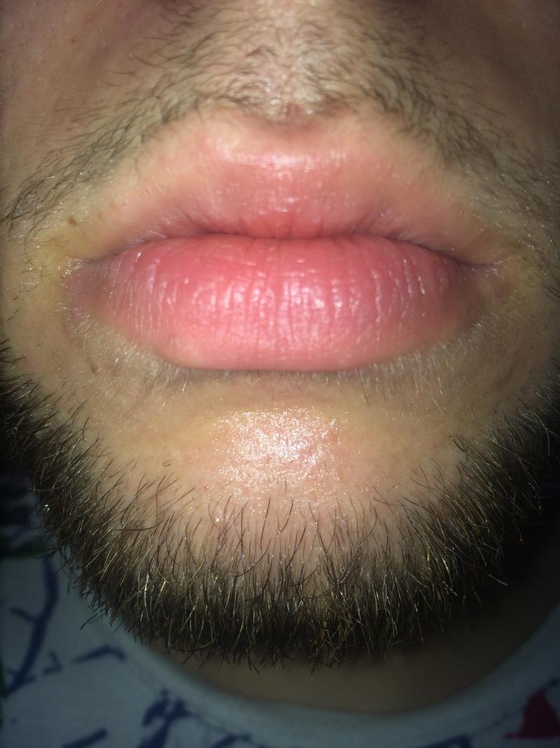 Exfoliate Cheilitis - Peeling lips SUCCESS STORY! at ...