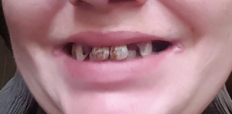 meine stiftzähne müssen gezogen werden