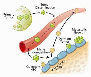 machen metastasen schmerzen