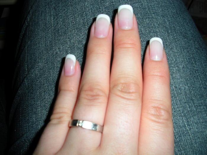 Die Merkmale gribka die Nägel der Hände