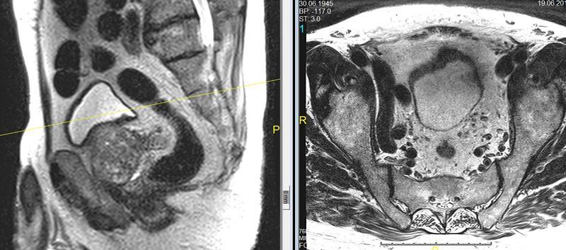rezidiv nach voll nervenerhaltender op archiv prostatakrebs
