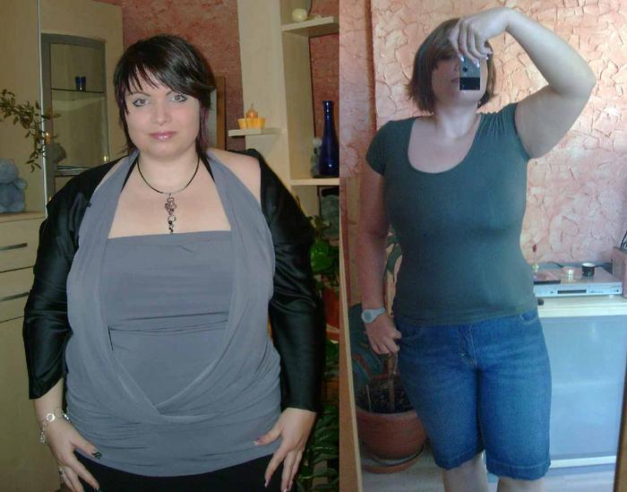 Quetiapin Gewichtsverlust